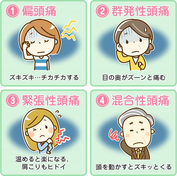 偏頭痛(片頭痛)・群発性頭痛・緊張性頭痛・混合性頭痛